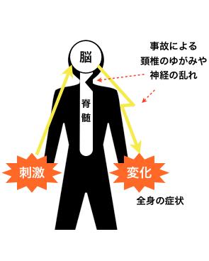 事故による頚椎のゆがみや神経の乱れ